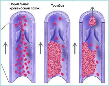 Таблетки и мази от варикоза